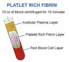 Platelet-Rich Fibrin