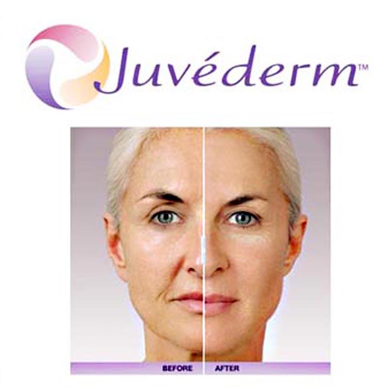 Orafacial & Lip Rejuvenation