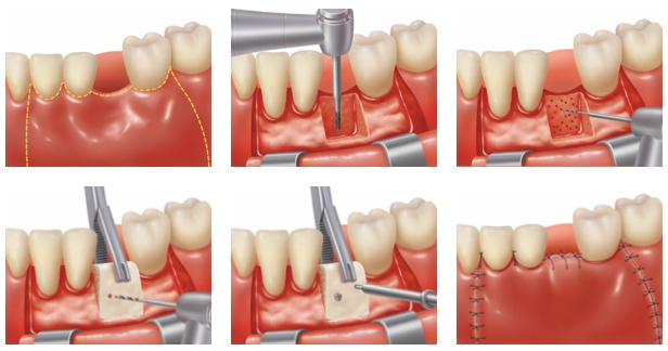 Ridge Preservation Augmentation And Splitting Integrative Dental Specialists Of Long Island