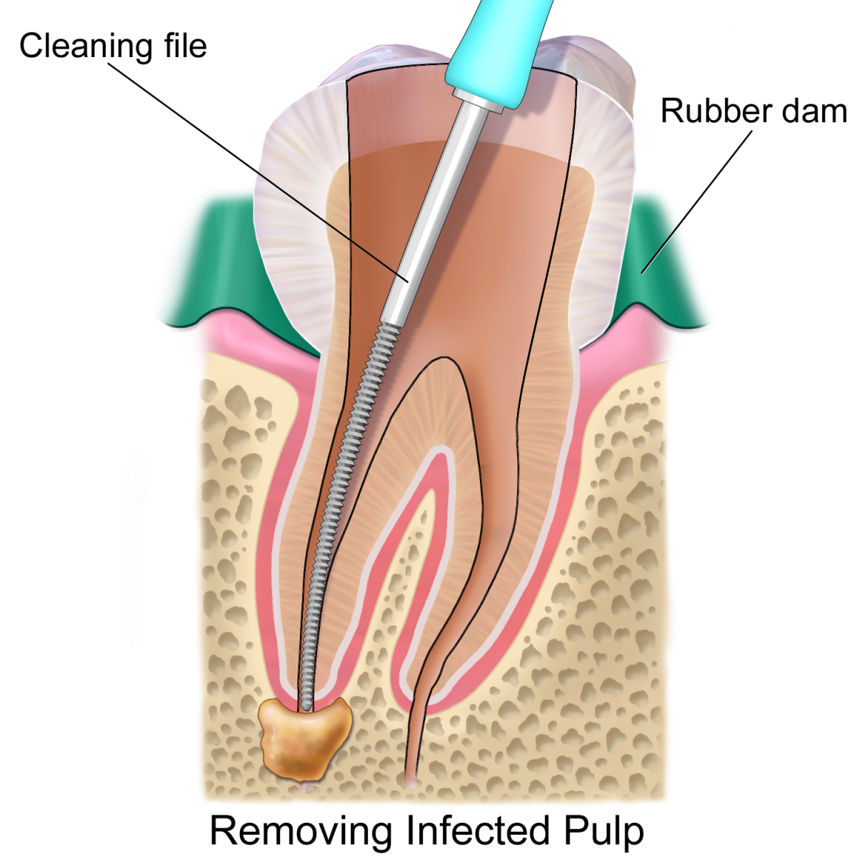 Common Root Canal Systems
