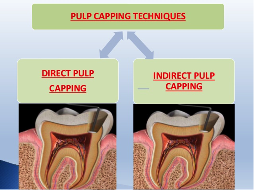 Pulp Capping Techniques